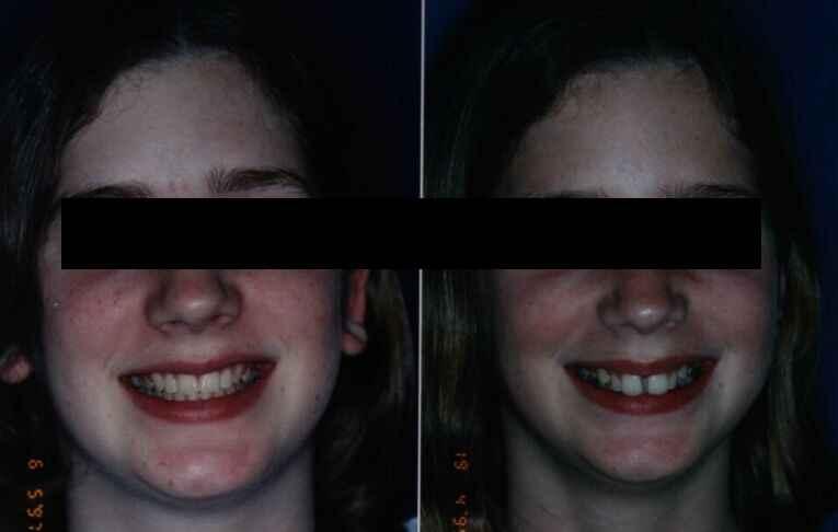 שיניים מרווחות