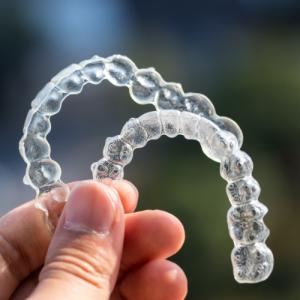 יישור שיניים בעזרת פלטות שקופות של אינוויזליין לעומת טיפול בסמכים